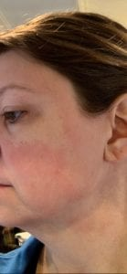picture of red welts on cheek
